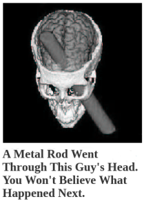 A Metal Rod Went Through This Guy's Head. You Won't Believe What Happened Next.